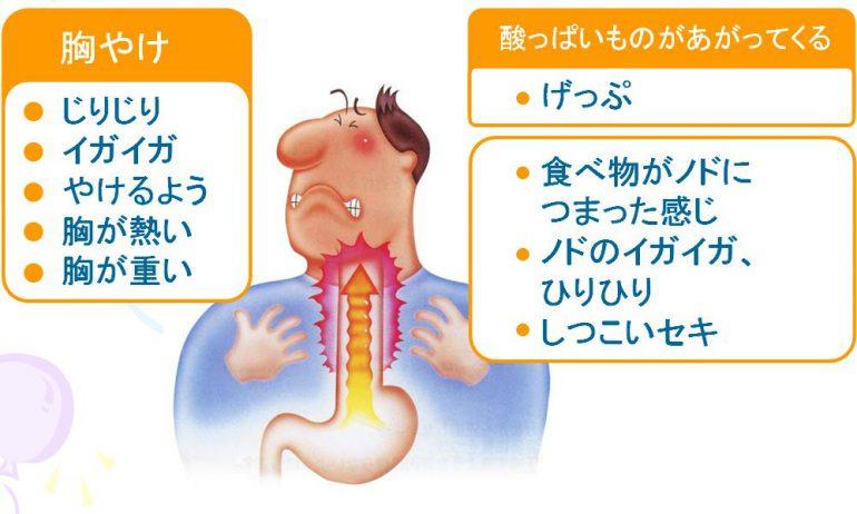 逆流 性 食道 炎 症状